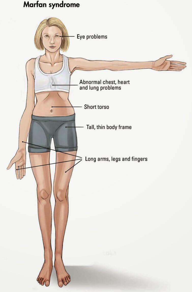 marfanov sindrom prezentacija