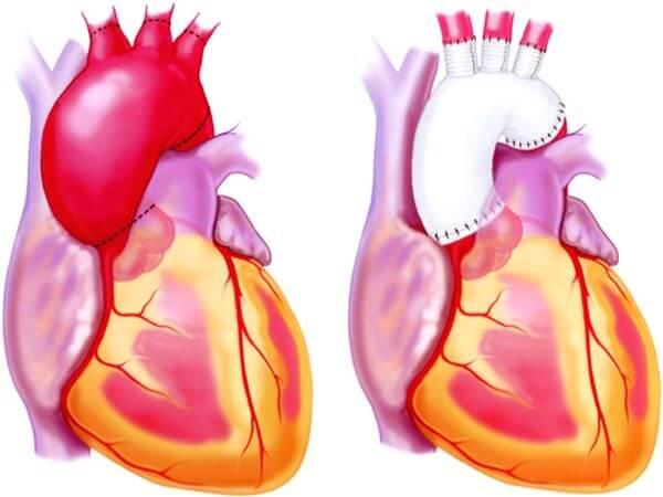 operacija aorte