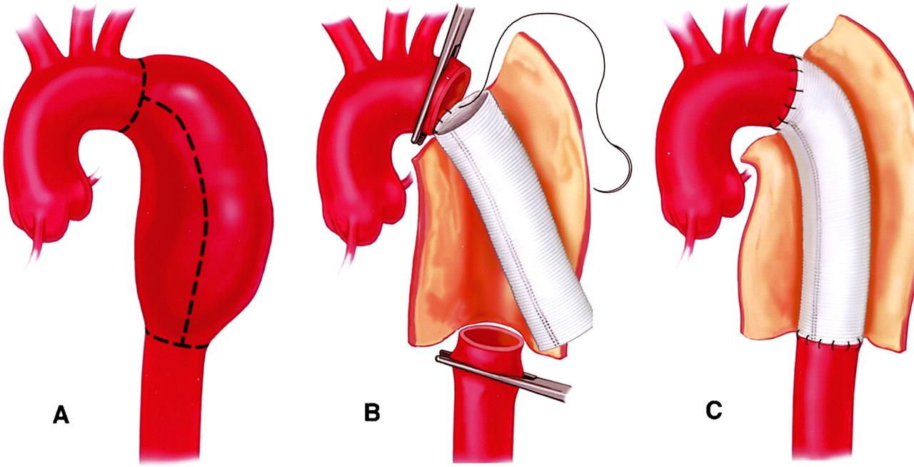 lečenje aneurizme aorte