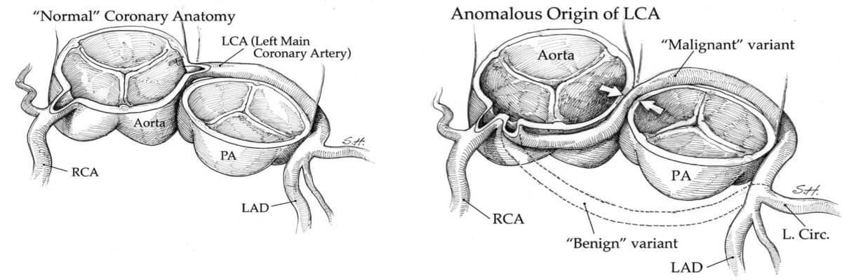 Anomalije koronarnih arterija
