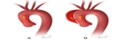 Disekcija aorte