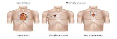 Minimalno invazivna kardiohirurgija