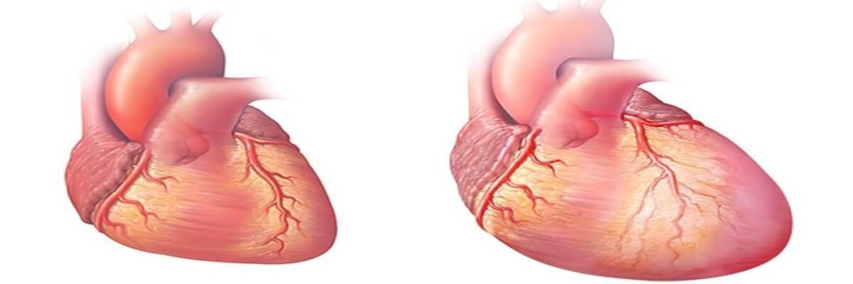 Remodelovanje srca – ne tako dobar proces